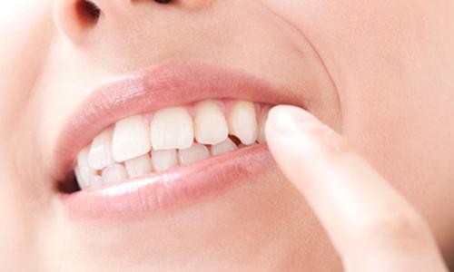 若い人のための入れ歯